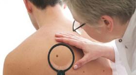 10 συμπτώματα καρκίνου που οι περισσότεροι άνθρωποι αγνοούν
